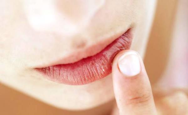 labios-ressecados-tratamento